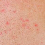 Izpuščaj, značilen za mnoge kožne bolezni